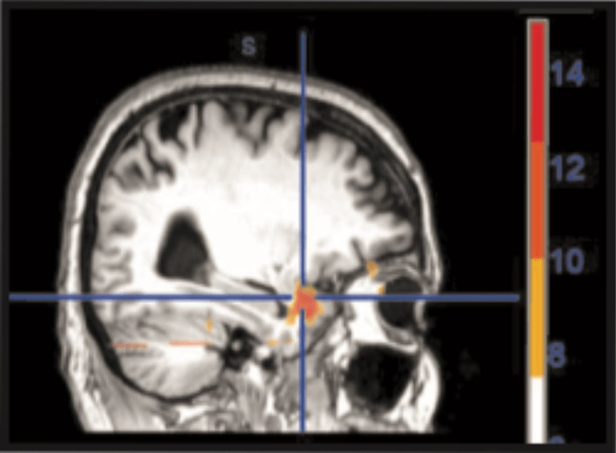 Brain fMRI of unresolved trauma patient before Neuro-Emotional Technique treatment